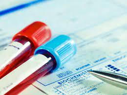 Name:  blood-test.jpg Views: 0 Size:  8.5 KB
